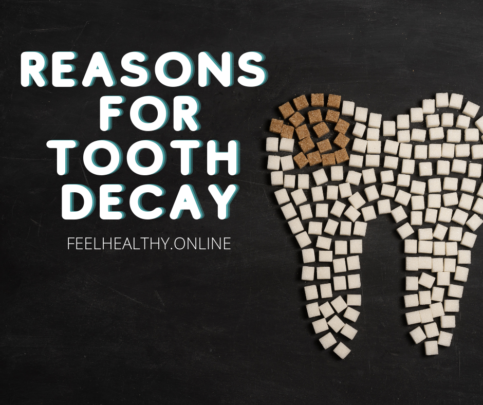 Reasons for tooth Decay and How can we prevent it??